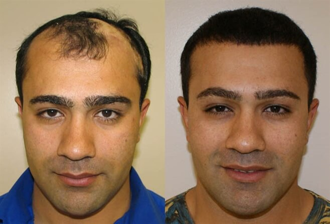 Haartransplantatie Voor en Na Foto's